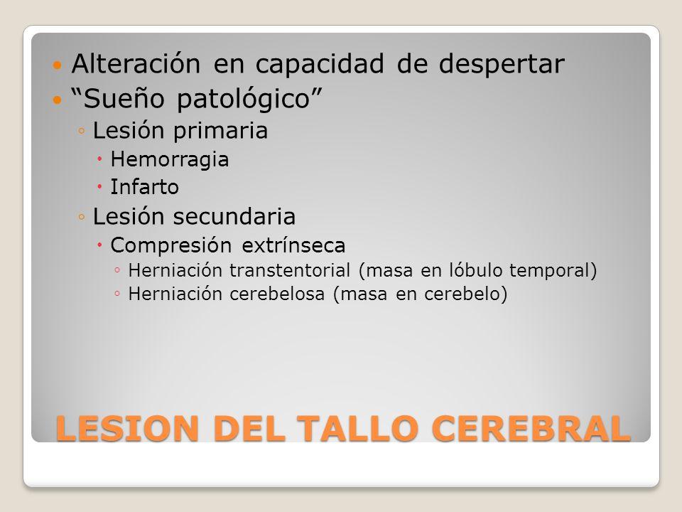 LESION DEL TALLO CEREBRAL Alteración en capacidad de despertar Sueño patológico Lesión primaria Hemorragia Infarto Lesión secundaria Compresión extrín