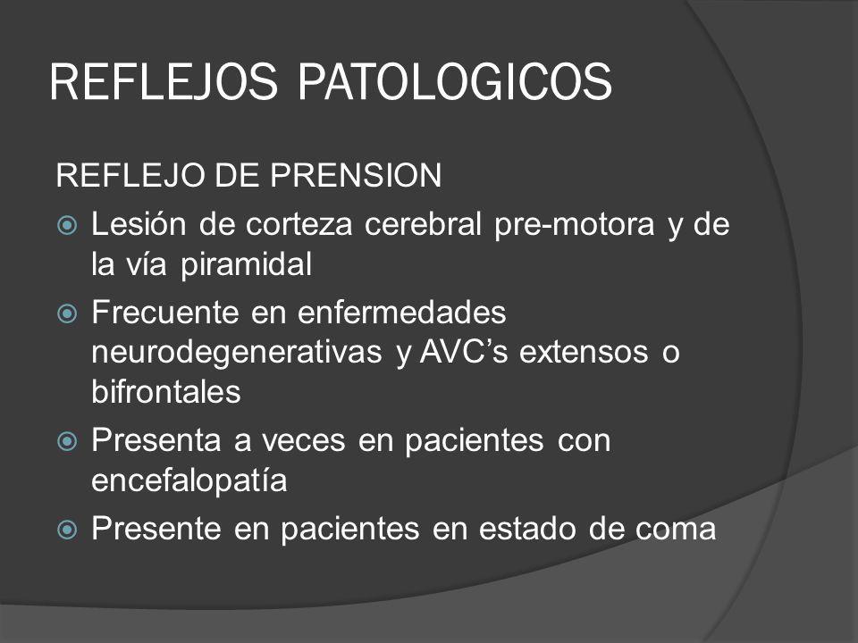 REFLEJOS PATOLOGICOS REFLEJO DE PRENSION Lesión de corteza cerebral pre-motora y de la vía piramidal Frecuente en enfermedades neurodegenerativas y AV