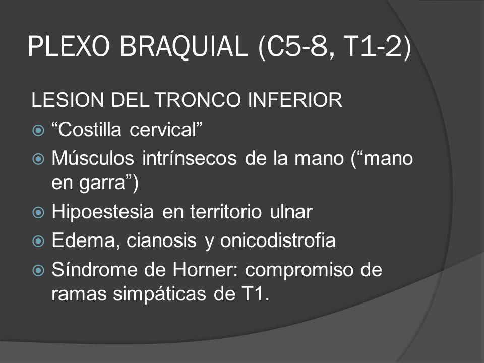 PLEXO BRAQUIAL (C5-8, T1-2) LESION DEL TRONCO INFERIOR Costilla cervical Músculos intrínsecos de la mano (mano en garra) Hipoestesia en territorio uln