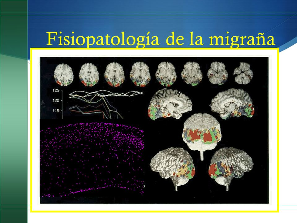 Fisiopatología de la migraña