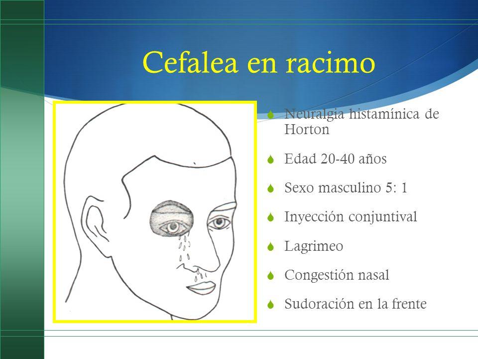 Cefalea en racimo Neuralgia histamínica de Horton Edad 20-40 años Sexo masculino 5: 1 Inyección conjuntival Lagrimeo Congestión nasal Sudoración en la