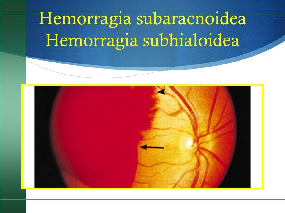 Hemorragia subaracnoidea Hemorragia subhialoidea