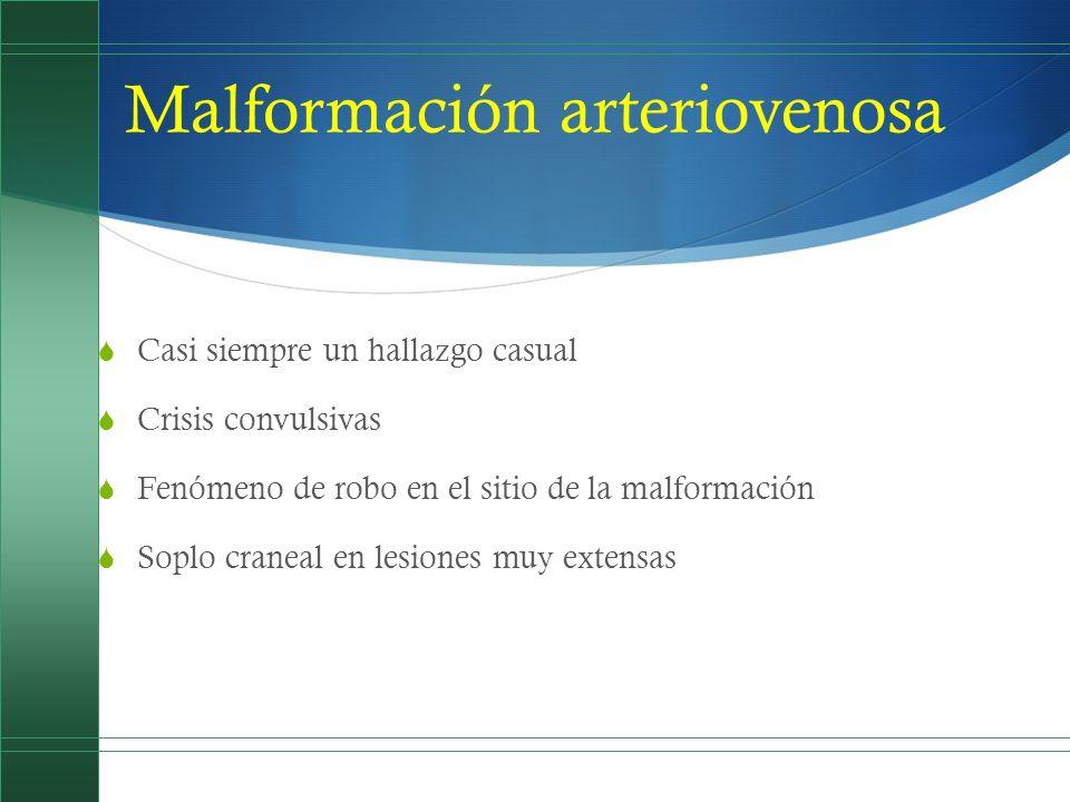 Malformación arteriovenosa Casi siempre un hallazgo casual Crisis convulsivas Fenómeno de robo en el sitio de la malformación Soplo craneal en lesione