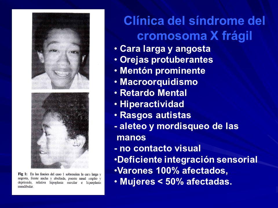 Clínica del síndrome del cromosoma X frágil Cara larga y angosta Orejas protuberantes Mentón prominente Macroorquidismo Retardo Mental Hiperactividad