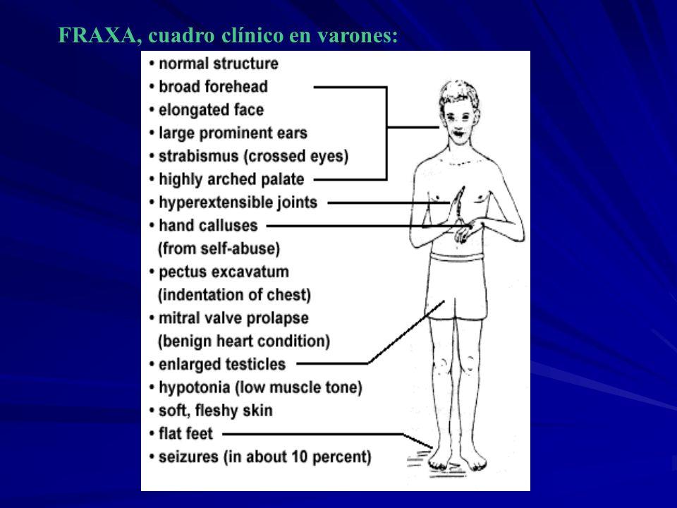FRAXA, cuadro clínico en varones: