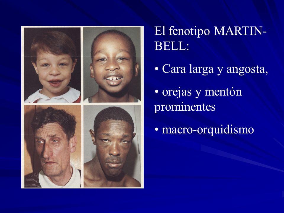 El fenotipo MARTIN- BELL: Cara larga y angosta, orejas y mentón prominentes macro-orquidismo