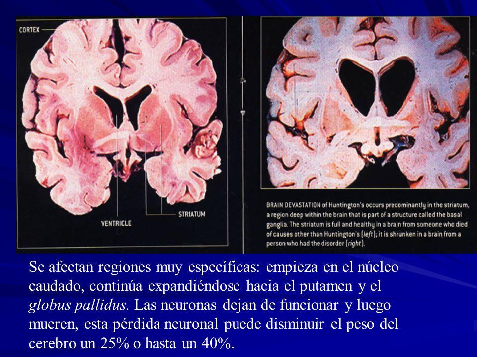 Se afectan regiones muy específicas: empieza en el núcleo caudado, continúa expandiéndose hacia el putamen y el globus pallidus. Las neuronas dejan de