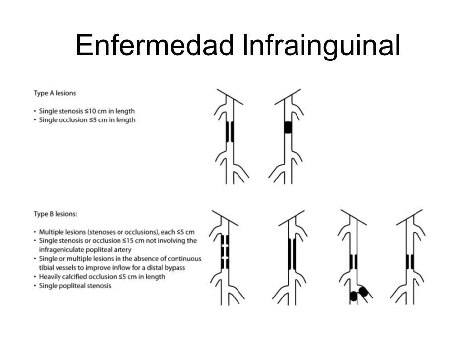 Enfermedad Infrainguinal