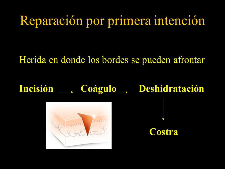 Reparación por primera intención Herida en donde los bordes se pueden afrontar Incisión Coágulo Deshidratación Costra