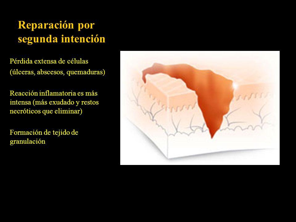 Reparación por segunda intención Pérdida extensa de células (úlceras, abscesos, quemaduras) Reacción inflamatoria es más intensa (más exudado y restos
