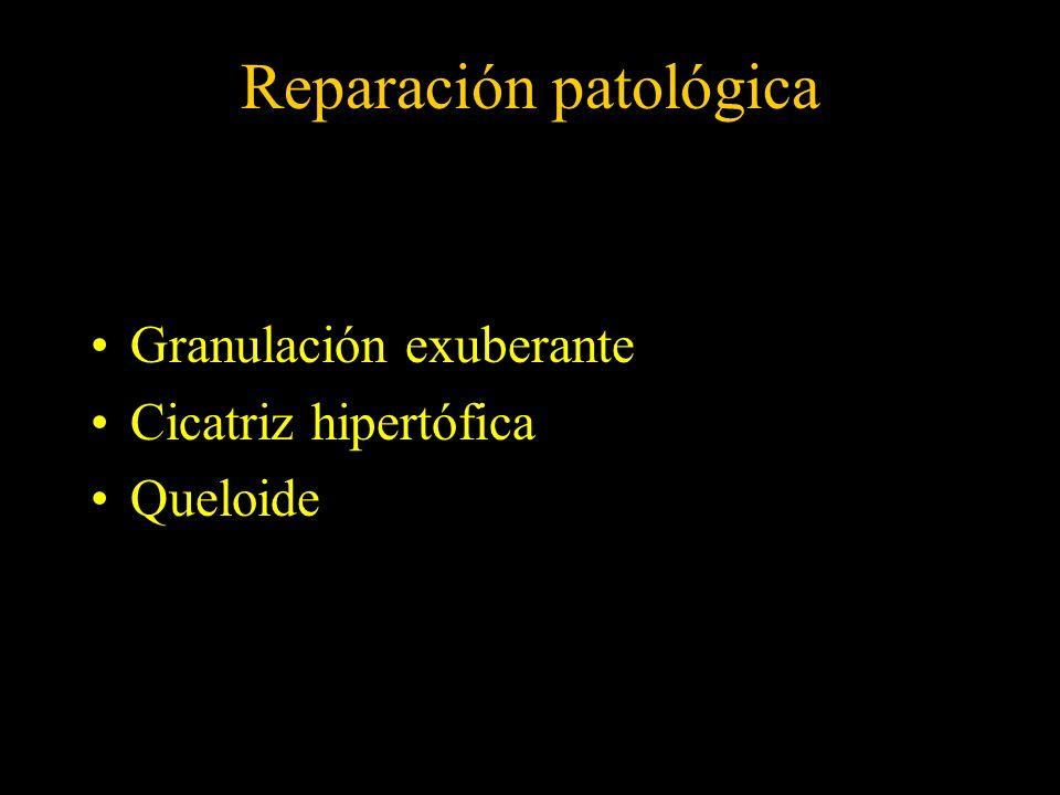 Reparación patológica Granulación exuberante Cicatriz hipertófica Queloide