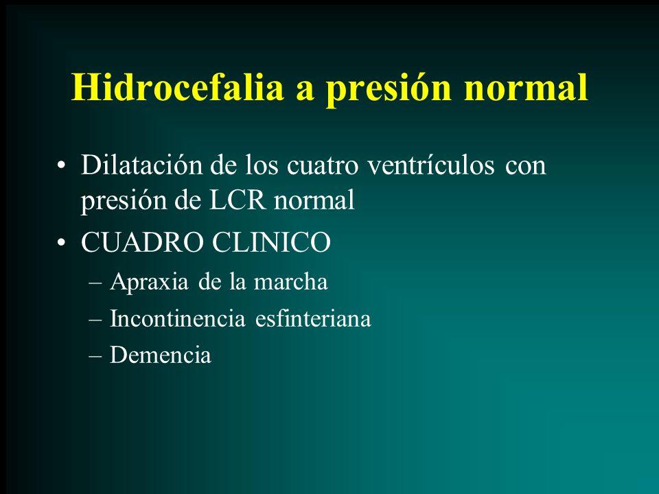 Hidrocefalia a presión normal Dilatación de los cuatro ventrículos con presión de LCR normal CUADRO CLINICO –Apraxia de la marcha –Incontinencia esfin