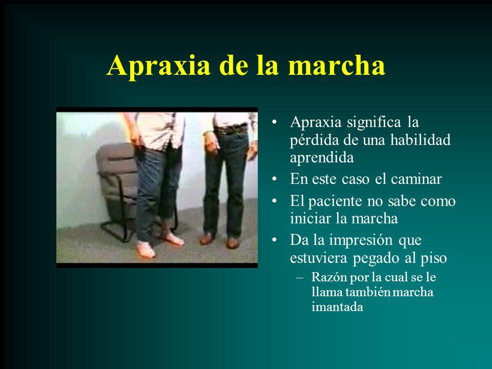 Apraxia de la marcha Apraxia significa la pérdida de una habilidad aprendida En este caso el caminar El paciente no sabe como iniciar la marcha Da la