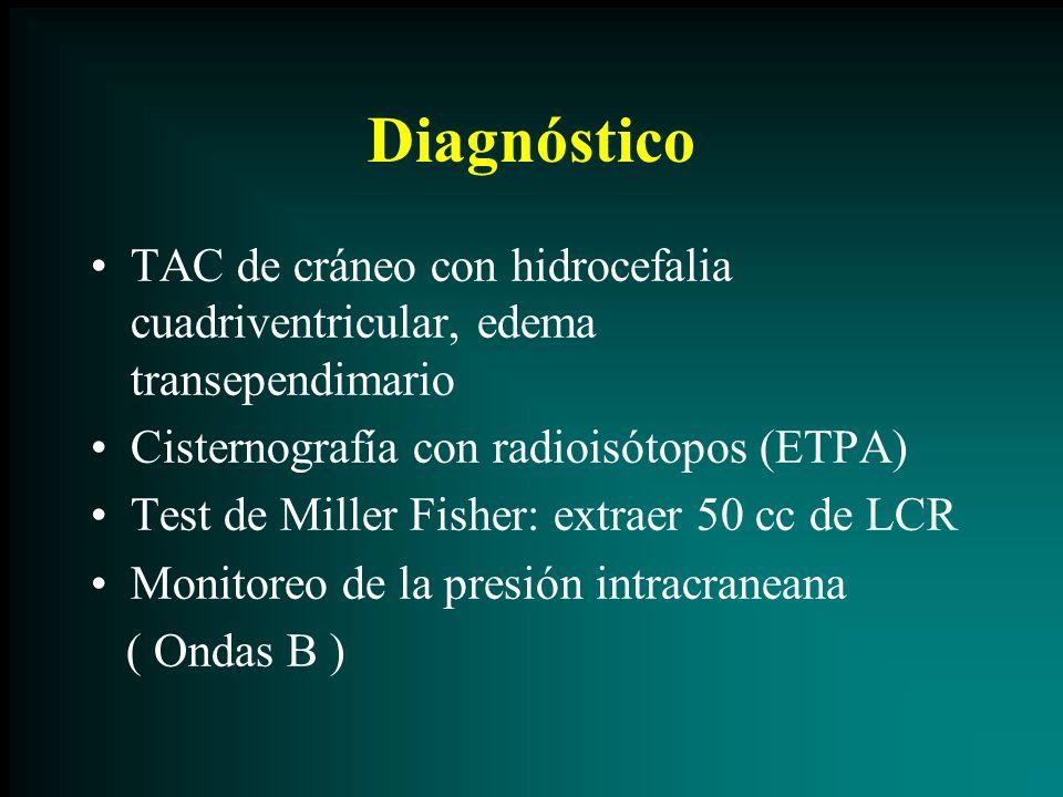 Diagnóstico TAC de cráneo con hidrocefalia cuadriventricular, edema transependimario Cisternografía con radioisótopos (ETPA) Test de Miller Fisher: ex
