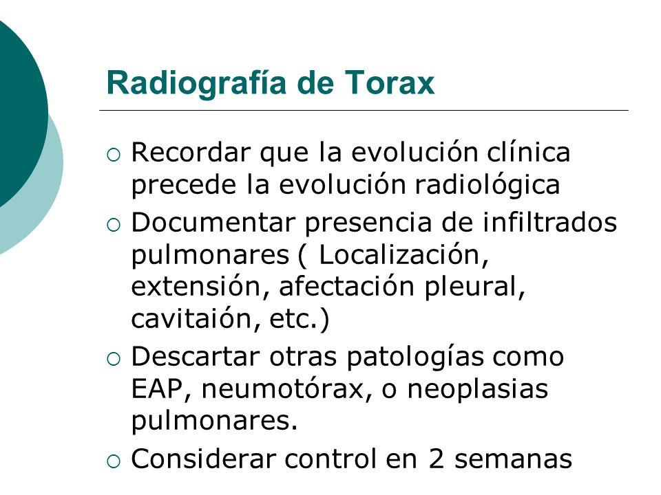 Radiografía de Torax Recordar que la evolución clínica precede la evolución radiológica Documentar presencia de infiltrados pulmonares ( Localización,