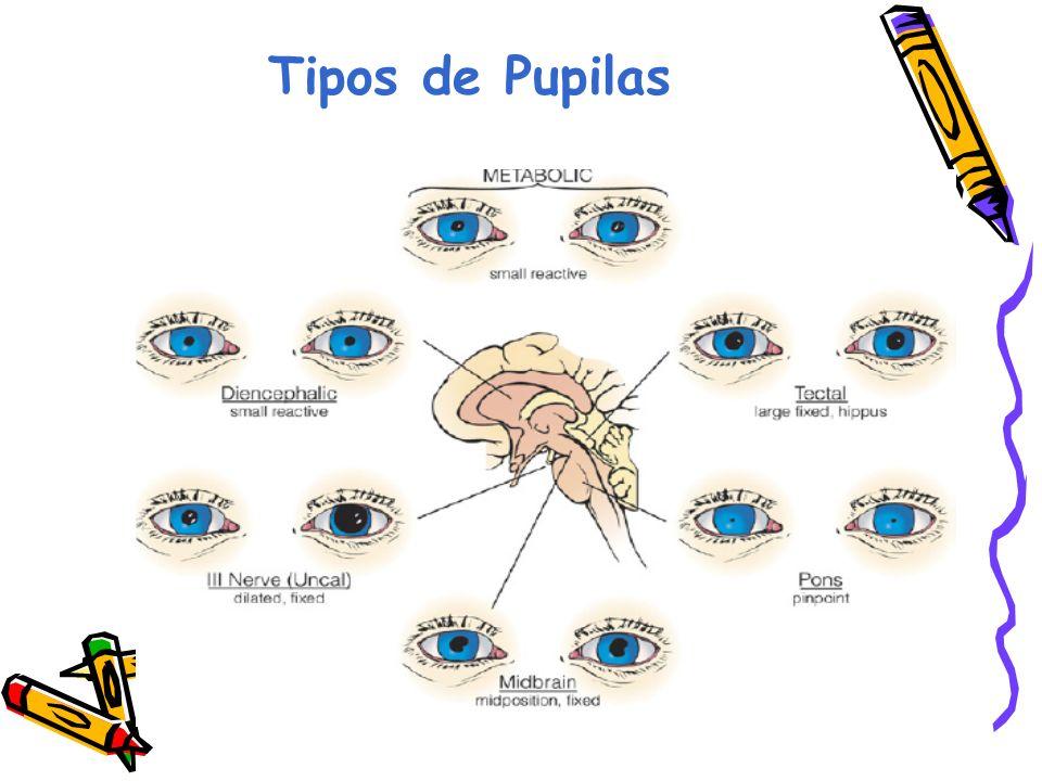 Tipos de Pupilas