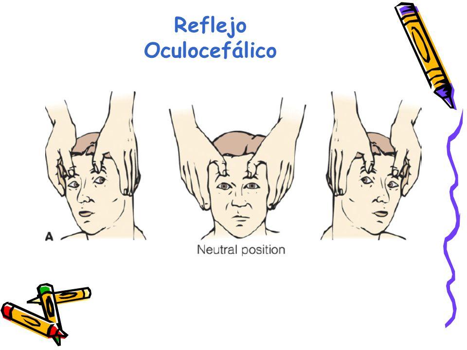 Reflejo Oculocefálico