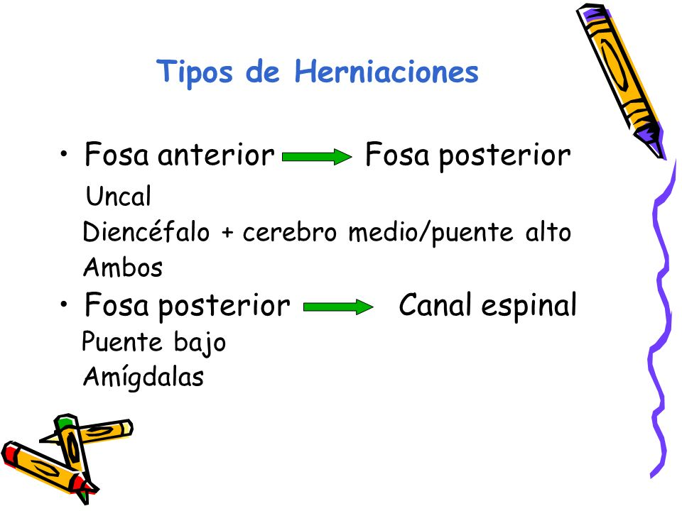 Tipos de Herniaciones Fosa anterior Fosa posterior Uncal Diencéfalo + cerebro medio/puente alto Ambos Fosa posterior Canal espinal Puente bajo Amígdalas