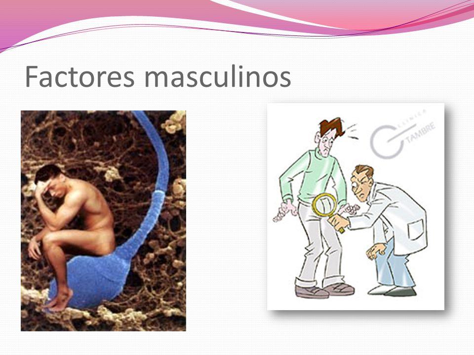 Factores masculinos