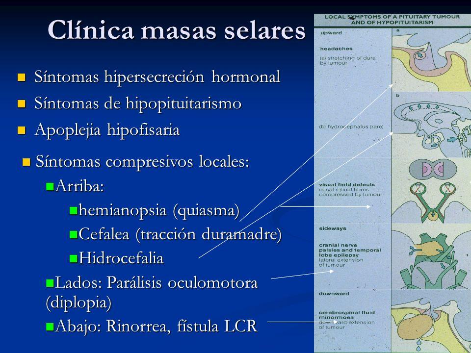 Clínica masas selares Síntomas hipersecreción hormonal Síntomas hipersecreción hormonal Síntomas de hipopituitarismo Síntomas de hipopituitarismo Apoplejia hipofisaria Apoplejia hipofisaria Síntomas compresivos locales: Síntomas compresivos locales: Arriba: Arriba: hemianopsia (quiasma) hemianopsia (quiasma) Cefalea (tracción duramadre) Cefalea (tracción duramadre) Hidrocefalia Hidrocefalia Lados: Parálisis oculomotora (diplopia) Lados: Parálisis oculomotora (diplopia) Abajo: Rinorrea, fístula LCR Abajo: Rinorrea, fístula LCR