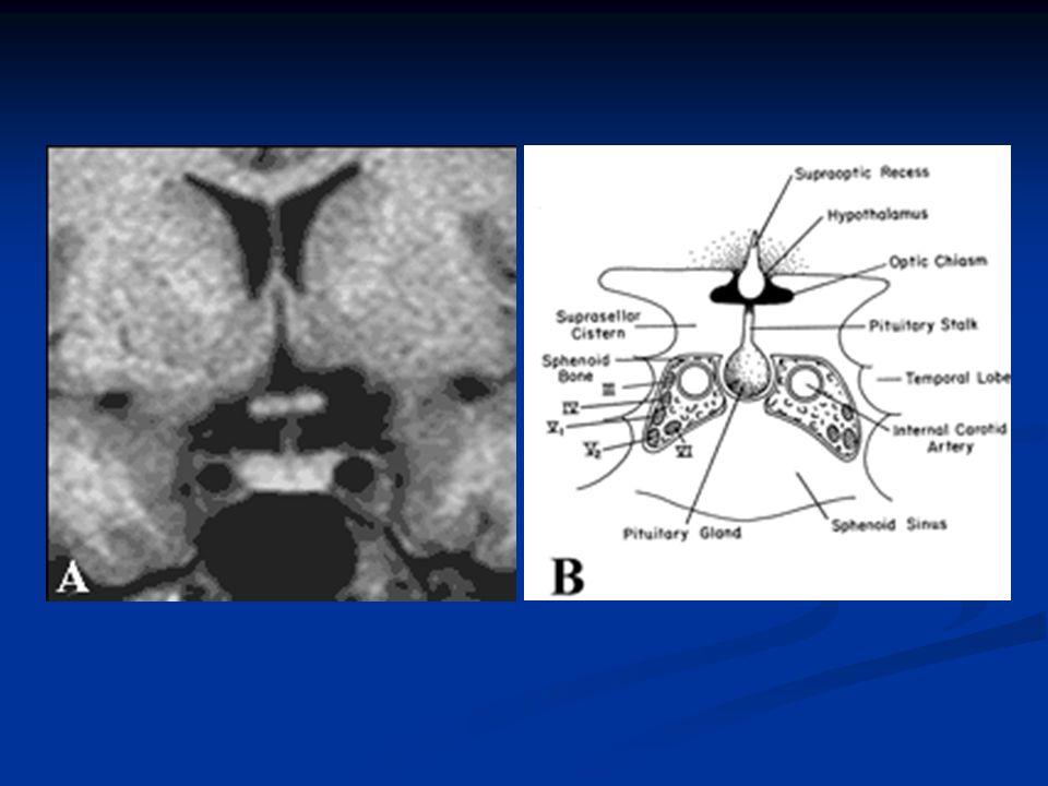 Radioterapia hipofisaria Técnicas utilizadas: Técnicas utilizadas: Radioterapia convencional (3 haces) (fraccionada) Radioterapia convencional (3 haces) (fraccionada) Radioterapia esteroatáxica (múltiples puertas entrada): Radioterapia esteroatáxica (múltiples puertas entrada): una dosis (radiocirugía/ gammaknife ) Lesiones pequeñas y localizadas, lejos quiasma una dosis (radiocirugía/ gammaknife ) Lesiones pequeñas y localizadas, lejos quiasma dosis fraccionadas.
