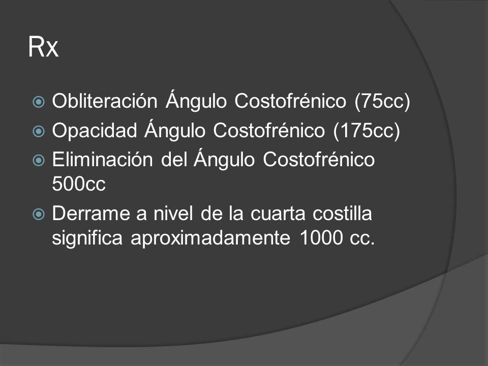 Rx Obliteración Ángulo Costofrénico (75cc) Opacidad Ángulo Costofrénico (175cc) Eliminación del Ángulo Costofrénico 500cc Derrame a nivel de la cuarta