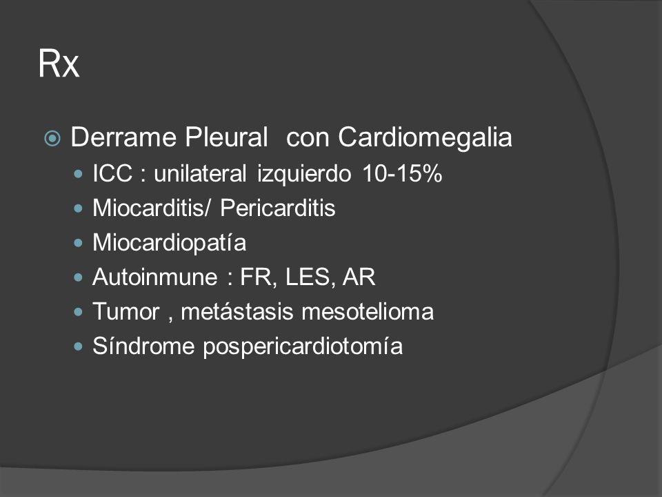Rx Derrame Pleural con Cardiomegalia ICC : unilateral izquierdo 10-15% Miocarditis/ Pericarditis Miocardiopatía Autoinmune : FR, LES, AR Tumor, metást