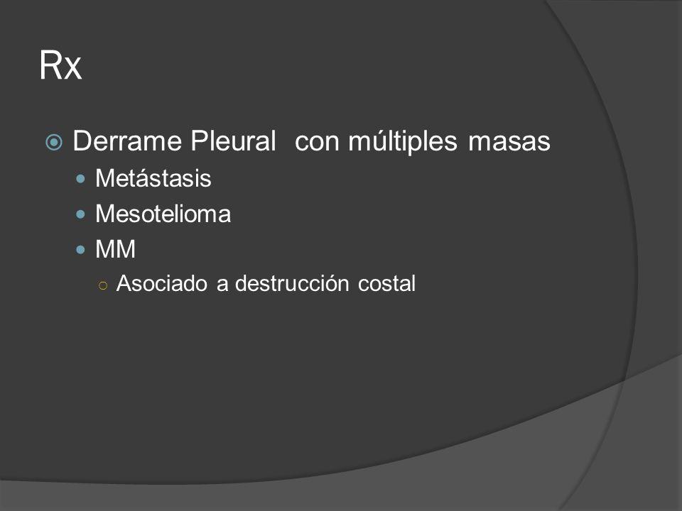 Rx Derrame Pleural con múltiples masas Metástasis Mesotelioma MM Asociado a destrucción costal