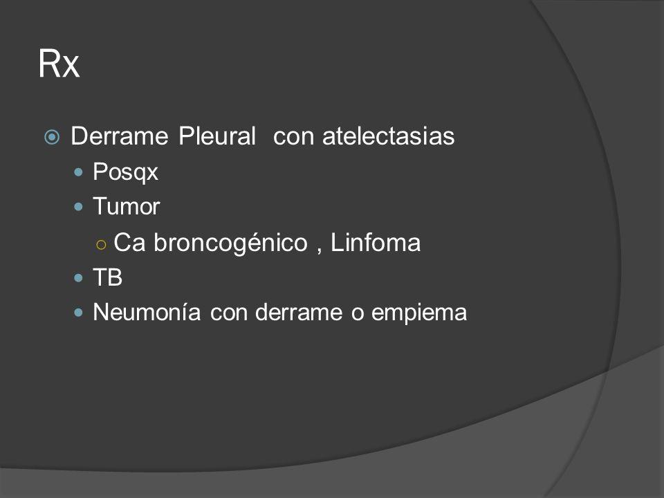 Rx Derrame Pleural con atelectasias Posqx Tumor Ca broncogénico, Linfoma TB Neumonía con derrame o empiema