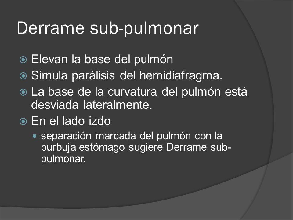 Derrame sub-pulmonar Elevan la base del pulmón Simula parálisis del hemidiafragma. La base de la curvatura del pulmón está desviada lateralmente. En e