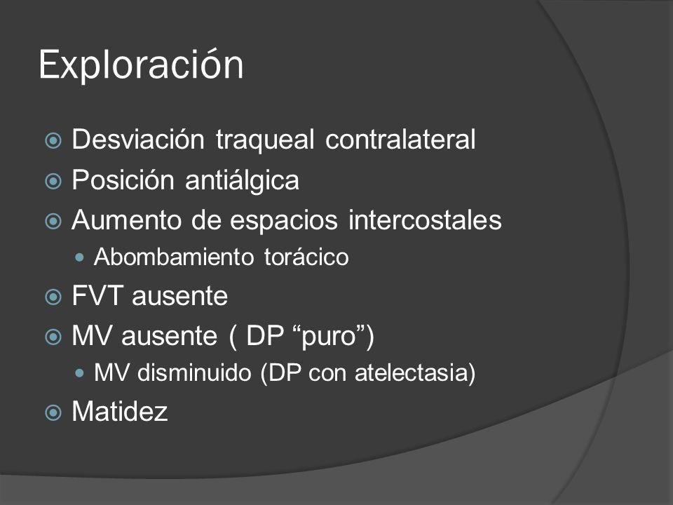 Derrame sub-pulmonar Elevan la base del pulmón Simula parálisis del hemidiafragma.