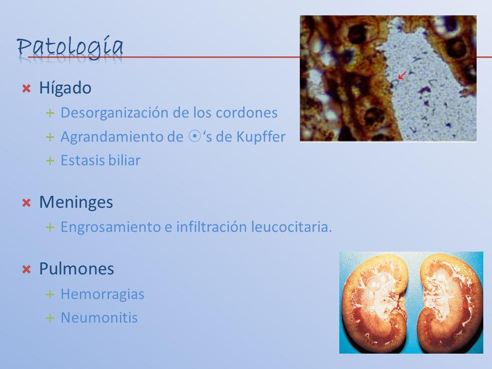 Hígado Desorganización de los cordones Agrandamiento de s de Kupffer Estasis biliar Meninges Engrosamiento e infiltración leucocitaria. Pulmones Hemor