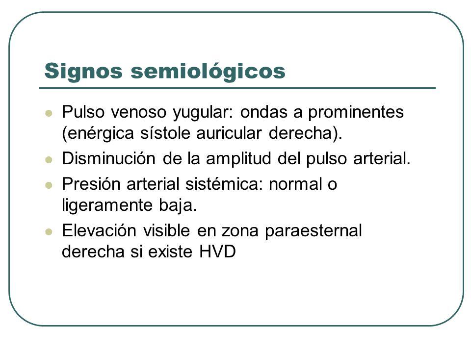 Signos semiológicos Pulso venoso yugular: ondas a prominentes (enérgica sístole auricular derecha). Disminución de la amplitud del pulso arterial. Pre