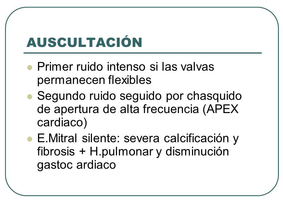 AUSCULTACIÓN Primer ruido intenso si las valvas permanecen flexibles Segundo ruido seguido por chasquido de apertura de alta frecuencia (APEX cardiaco