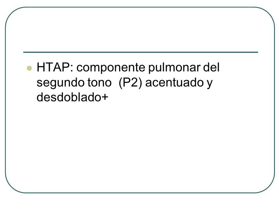 HTAP: componente pulmonar del segundo tono (P2) acentuado y desdoblado+