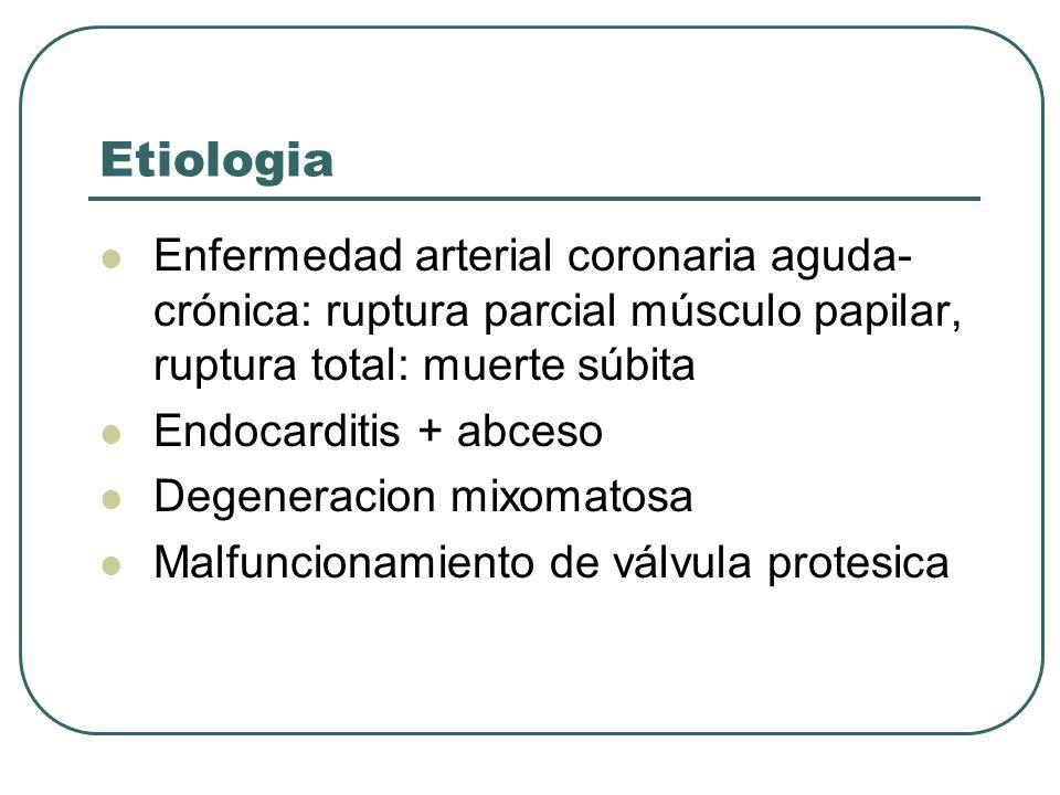 Etiologia Enfermedad arterial coronaria aguda- crónica: ruptura parcial músculo papilar, ruptura total: muerte súbita Endocarditis + abceso Degeneraci