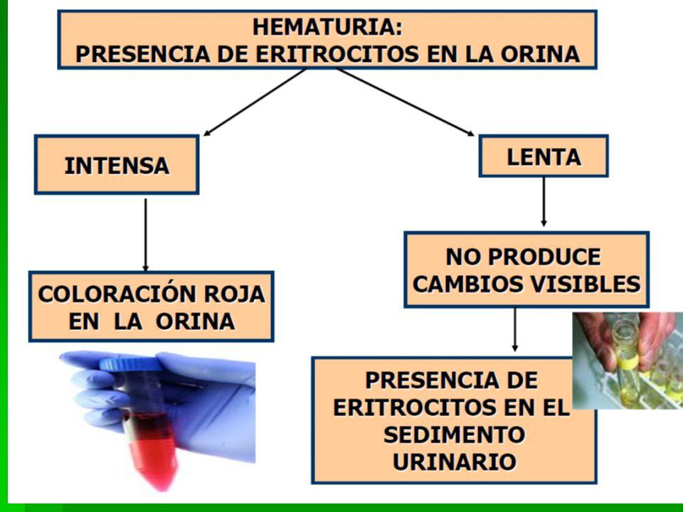 7 LABORATORIO Y GABINETE EN NEFROLOGIA Hematuria: Hematuria: Presencia de más de 3 glóbulos rojos por campo de alto poder en una orina centrifugada Presencia de más de 3 glóbulos rojos por campo de alto poder en una orina centrifugada Asintomática.