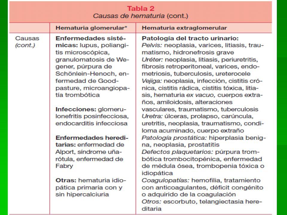 20 LABORATORIO Y GABINETE EN NEFROLOGIA Cociente de proteinuria (grs.)/ creatinuria (grs.) Valores < 0.2 gr./gr.