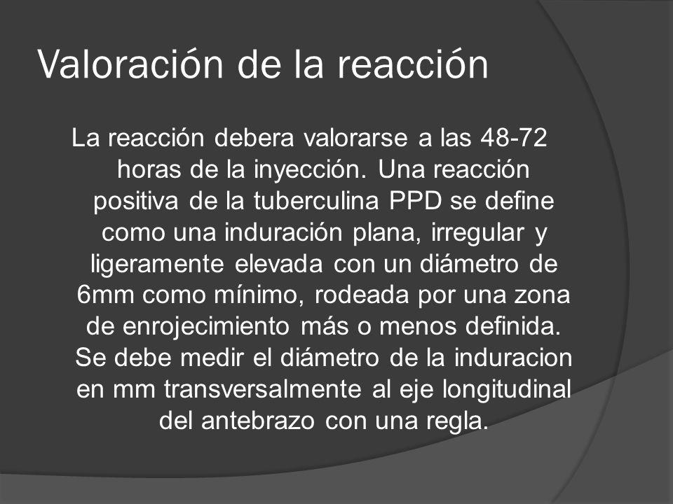 Valoración de la reacción La reacción debera valorarse a las 48-72 horas de la inyección. Una reacción positiva de la tuberculina PPD se define como u