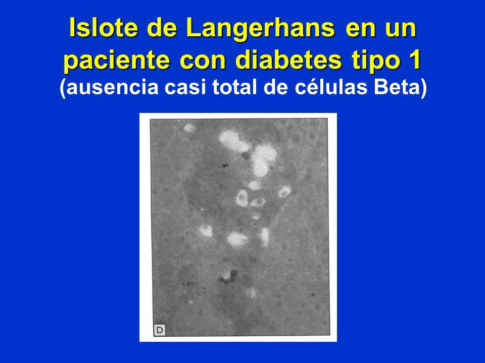 Islote de Langerhans en un paciente con diabetes tipo 1 (ausencia casi total de células Beta)