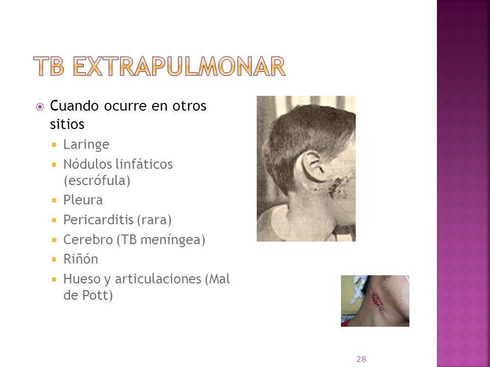 Cuando ocurre en otros sitios Laringe Nódulos linfáticos (escrófula) Pleura Pericarditis (rara) Cerebro (TB meníngea) Riñón Hueso y articulaciones (Ma