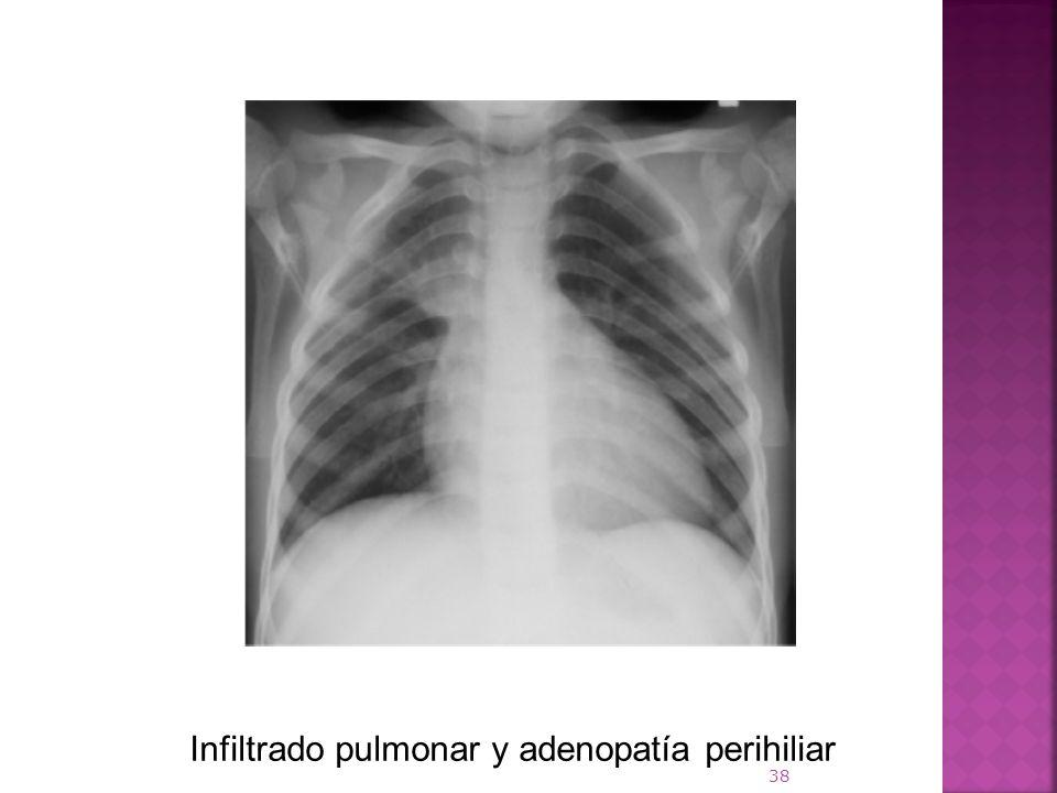 Infiltrado pulmonar y adenopatía perihiliar 38