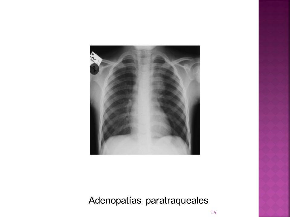Adenopatías paratraqueales 39