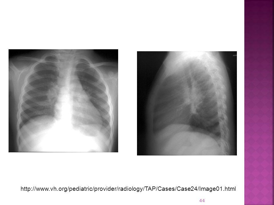 http://www.vh.org/pediatric/provider/radiology/TAP/Cases/Case24/Image01.html 44