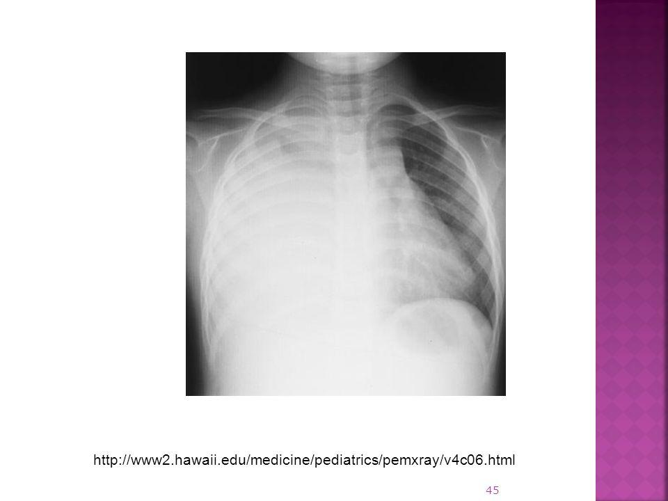 http://www2.hawaii.edu/medicine/pediatrics/pemxray/v4c06.html 45