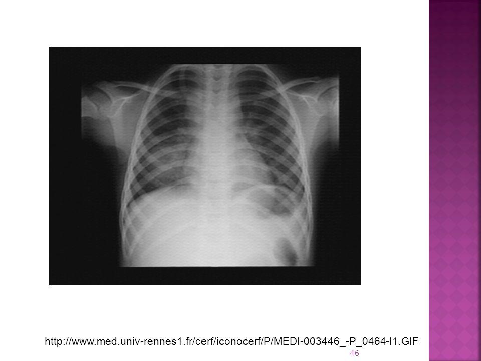 http://www.med.univ-rennes1.fr/cerf/iconocerf/P/MEDI-003446_-P_0464-I1.GIF 46