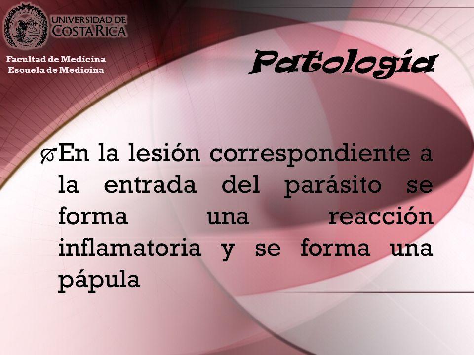Patología En la lesión correspondiente a la entrada del parásito se forma una reacción inflamatoria y se forma una pápula Facultad de Medicina Escuela