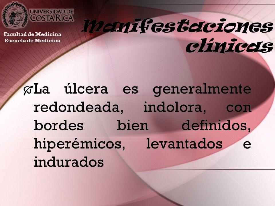 Manifestaciones clínicas La úlcera es generalmente redondeada, indolora, con bordes bien definidos, hiperémicos, levantados e indurados Facultad de Me