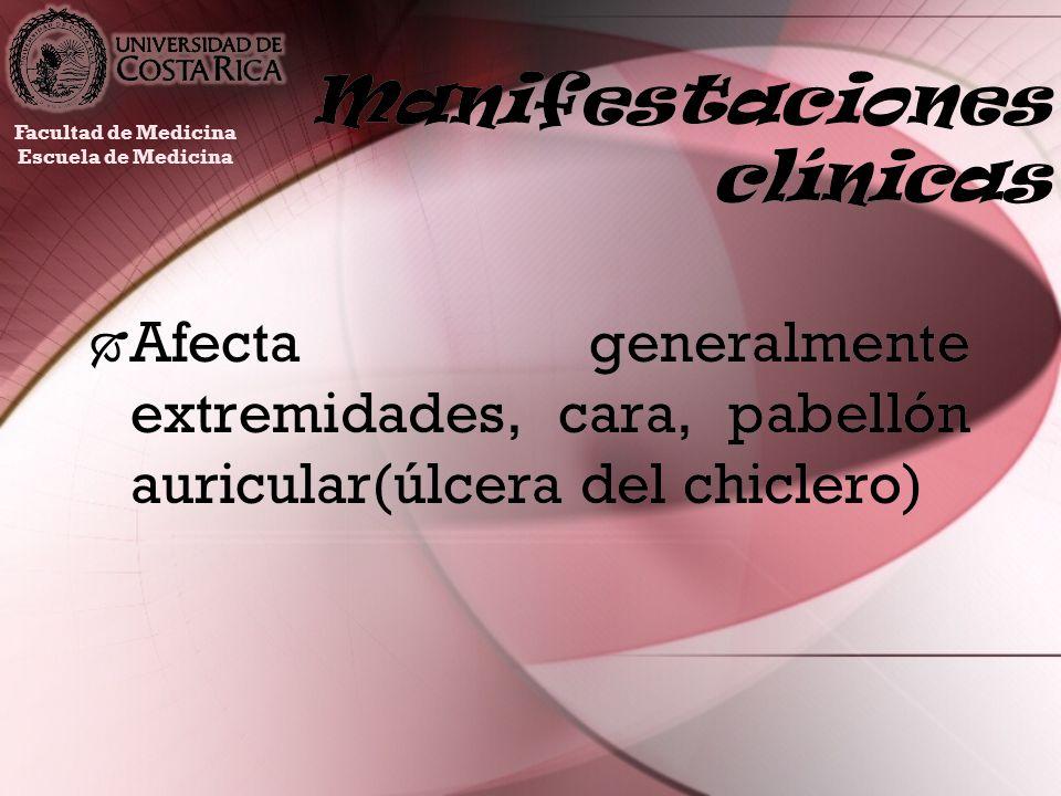 Manifestaciones clínicas Afecta generalmente extremidades, cara, pabellón auricular(úlcera del chiclero) Facultad de Medicina Escuela de Medicina