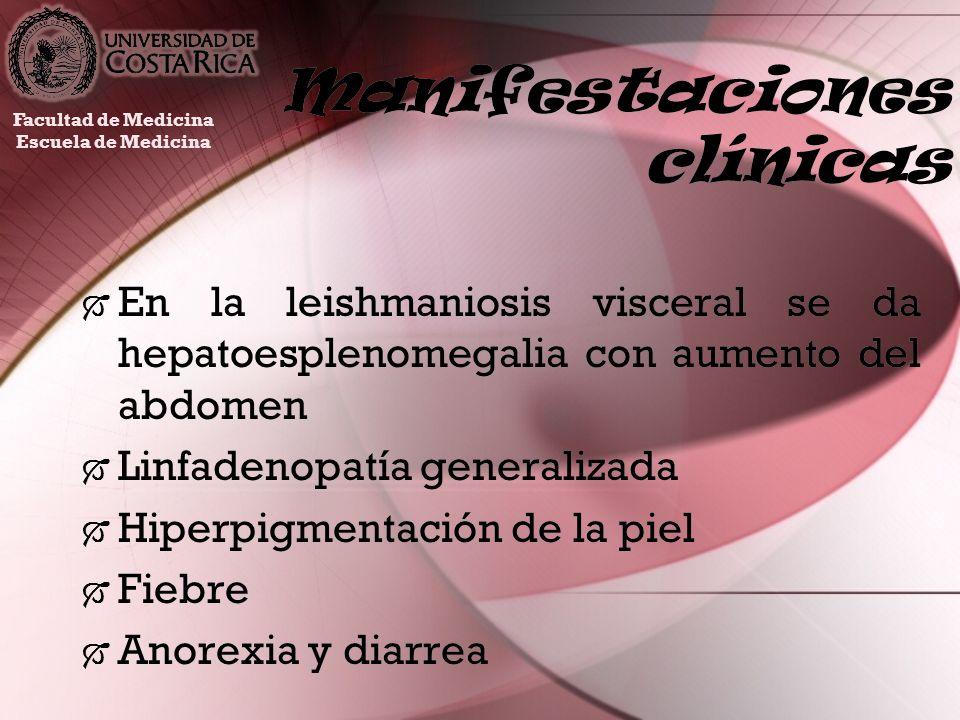Manifestaciones clínicas En la leishmaniosis visceral se da hepatoesplenomegalia con aumento del abdomen Linfadenopatía generalizada Hiperpigmentación